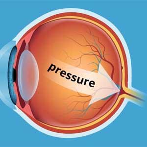 Glaucoma Test Bucks County Pennsylvania